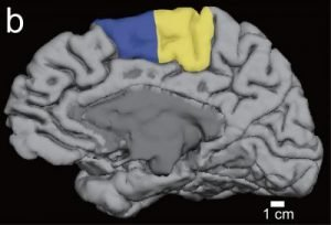 This is an MRI of the Supplementary Motor Area.