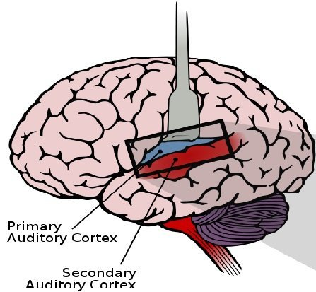 The diagram shows the location of the primary and secondary auditory cortex in the brain.
