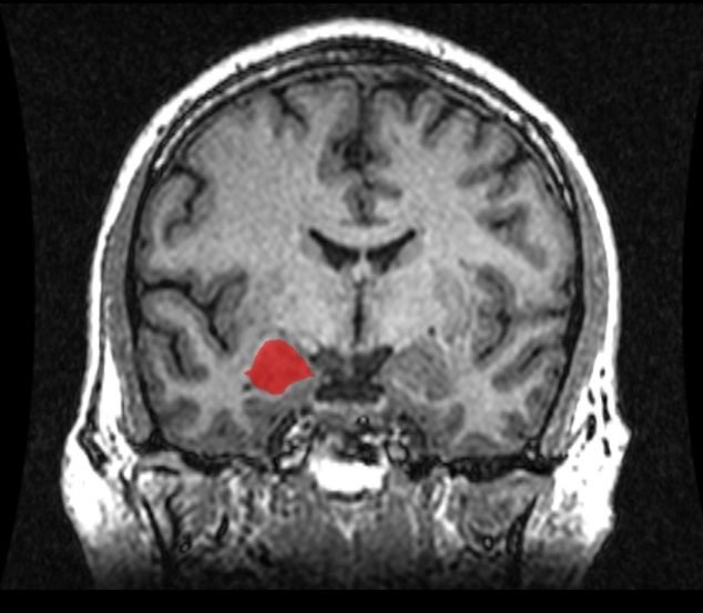 The image is an MRI showing the location of the amygdala.