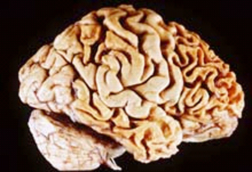 The image shows frontotemporal degeneration in the brain.