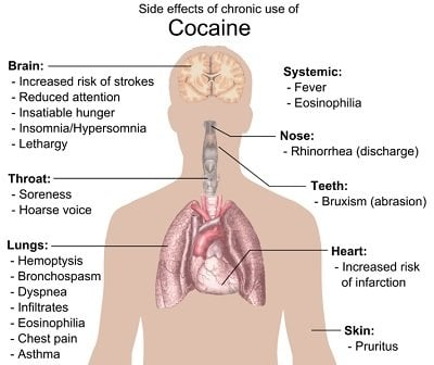 The image details the effects of cocaine on body.