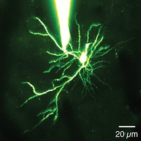 This image is a dendrite.