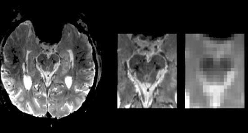 This fmri brain scan is related to the research.