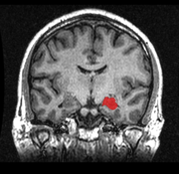 MRI coronal view of the hippocampus.