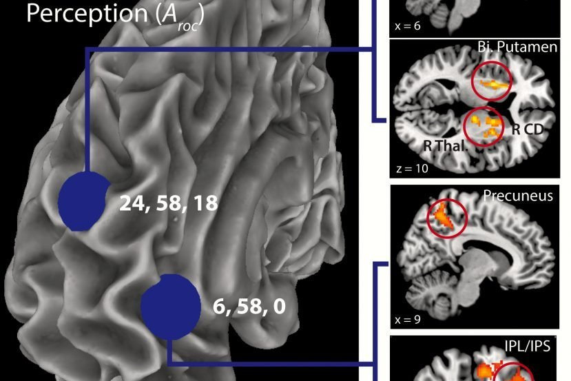 The image shows the fMRI results for the study. The caption best describes the image.