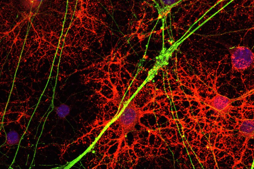 This is an electrophysiology slide showing neurons