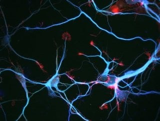 This is an image of neurons.