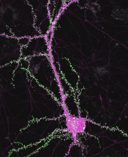 Fluorescence image of a neuron labeled for synapses (green) and cell structure (magenta).