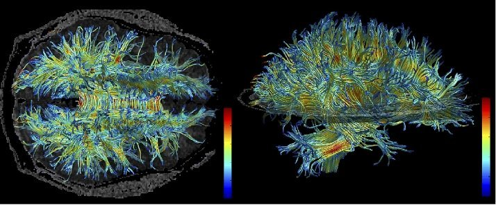 This is an MRI of white matter structures in the human brain.