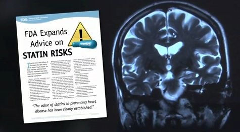 The image shows a brain scan and a statins poster.