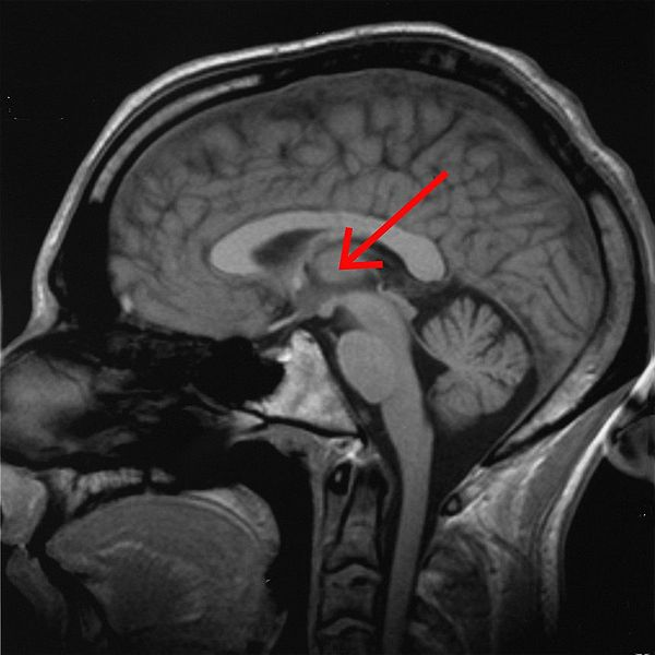This mri scan shows the location of the thalamus.