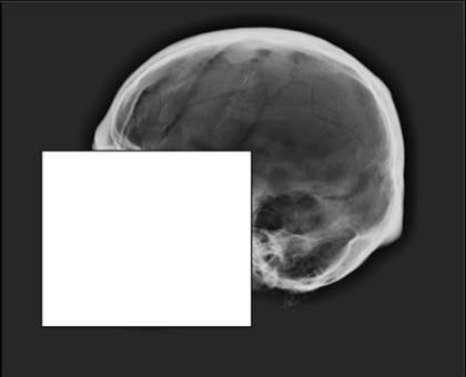 This image shows the skull used in the test.