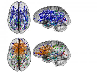 The image shows the different mapping in the brain scans between men and women.