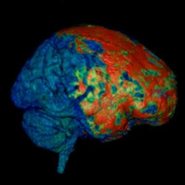 This MRI scan show the effects of concussion on the brain.