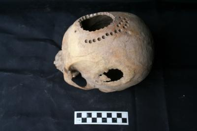 This is a trepanned skull with new bone growth.