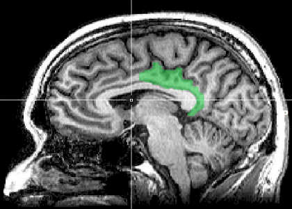 This is an MRI of the posterior cingulate cortex in the human brain.