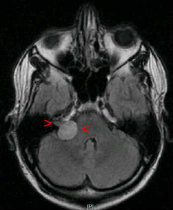 This is an MRI scan of a acoustic neuroma.