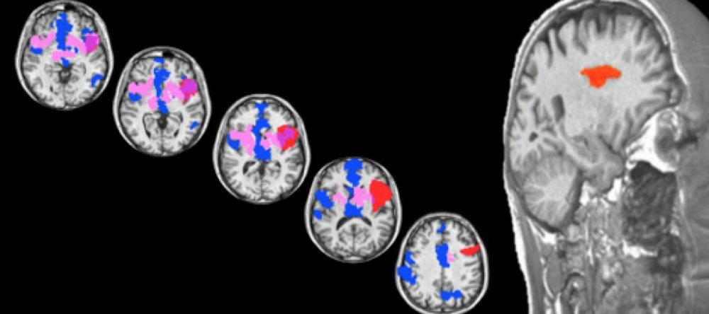 These fMRI scans show brain regions activated by sexual desire.