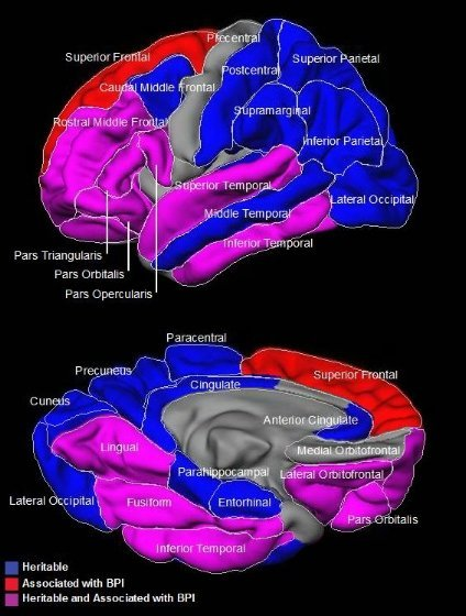 The image shows brain regions associated with bipolar disorder.