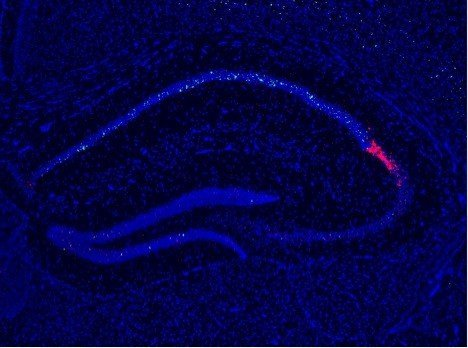 This image shows the cell activity in the hippocampus.