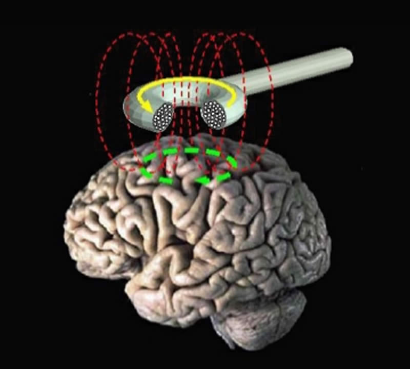 The image shows a brain with a diagram of a TMS machine placed above it.