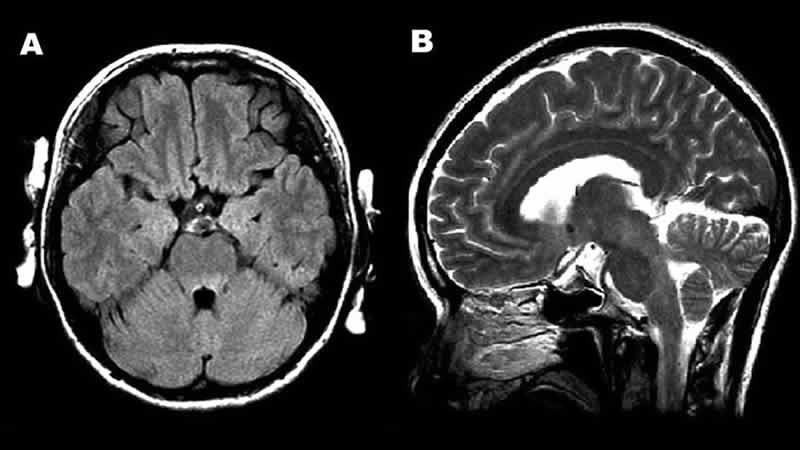 This MRI shows encephalitis caused by enterovirus.