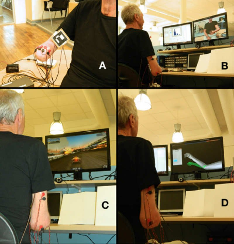The image shows four different aspects of the patient using the arm to control a video game.
