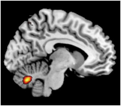 The image is an frmi which show activation of ion channels in the cerebellum.
