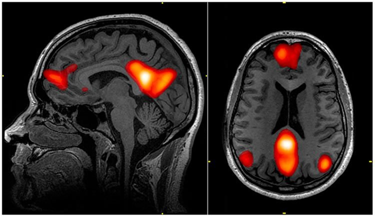 This image shows an MRI of the default mode network in the brain.