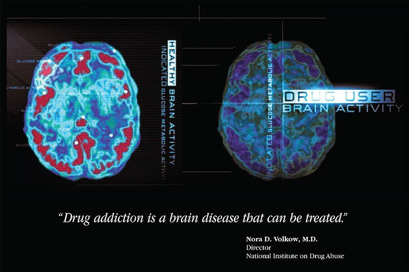This image shows brain activity scans of a healthy person and one addicted to drugs.