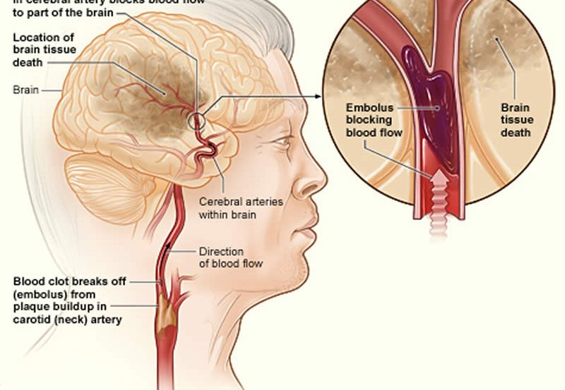 image shows how an ischemic stroke can occur in the brain.