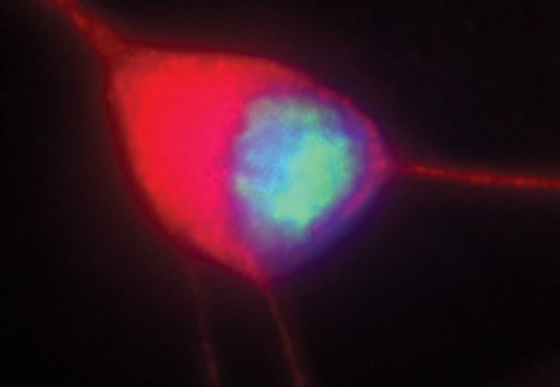 This image shows a motor neuron which was created from stem cells.