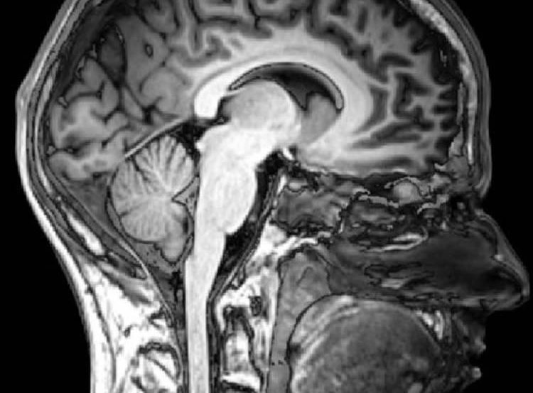 This MRI scan shows a sagital view of the human head.