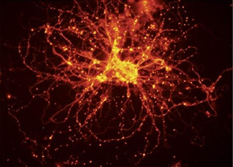 The image shows neurons created from the iPSCs.