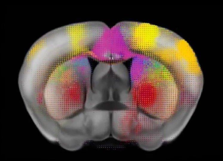 This image is a clip from the video and shows colored dots over the brain.