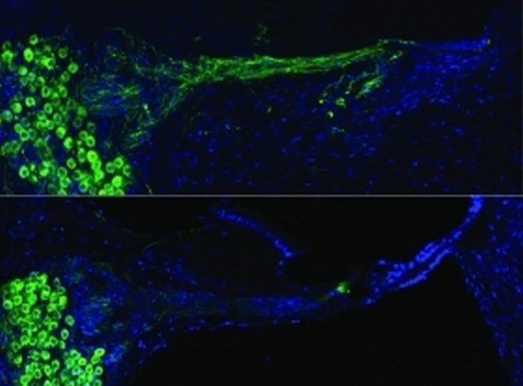 This image shows regenerated auditory neurons using gene therapy.