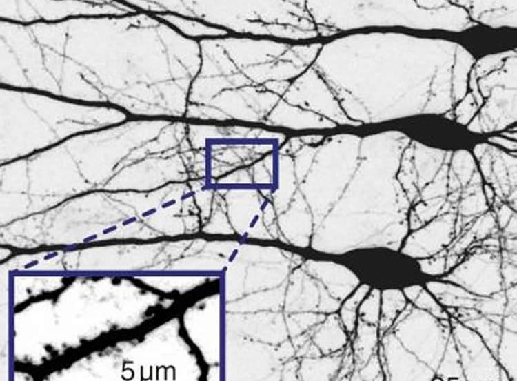 This image shows neurons.