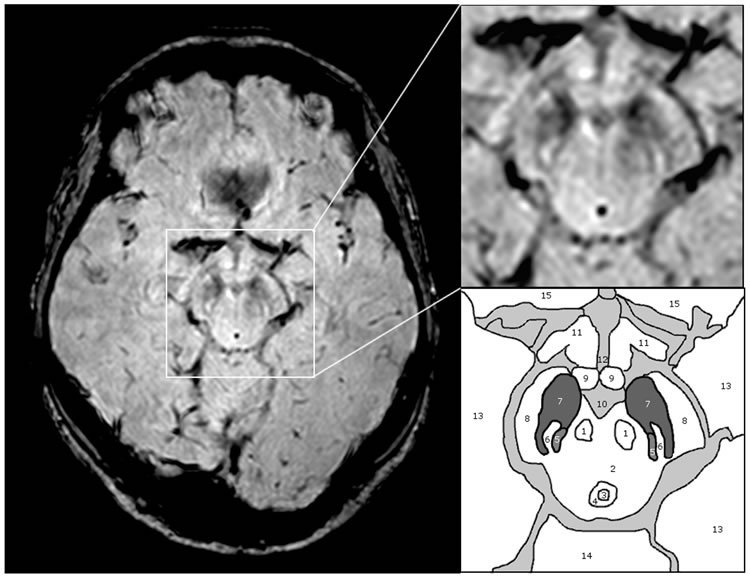 This image shows the anatomy of the substantia nigra.