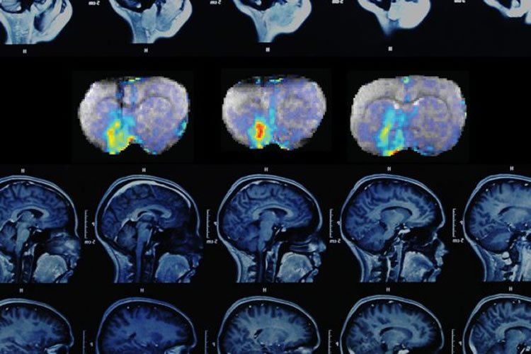 The image shows MRI brain cans showing dopamine changes over time.
