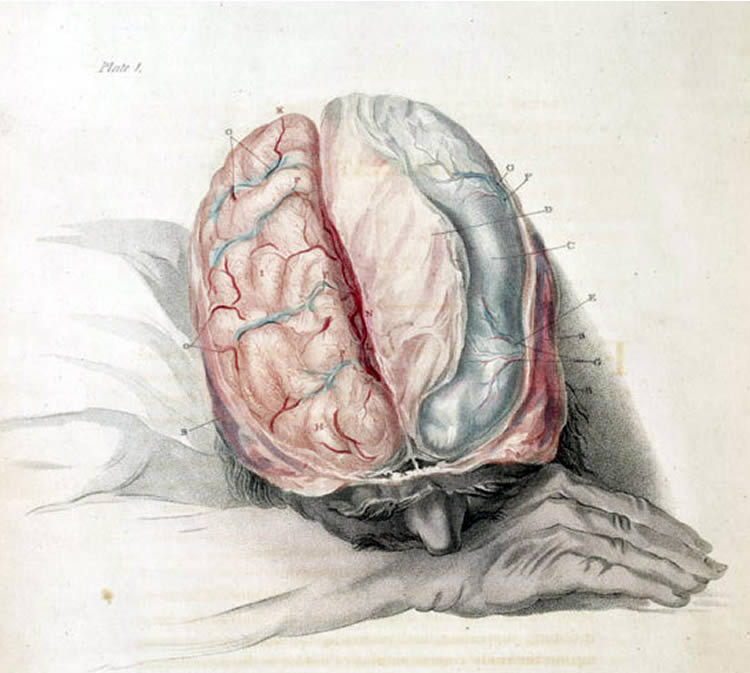 This image shows a person sleeping. Their brain is exposed.