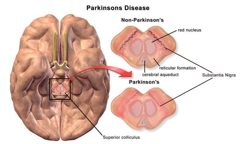 Parkinson's Disease brain is compared