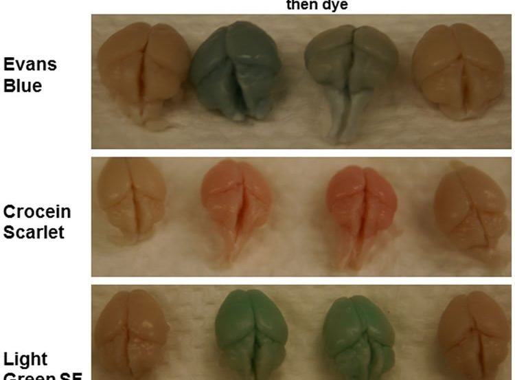 This image shows three different examples of the brains used in the experiment. The caption best describes the image.