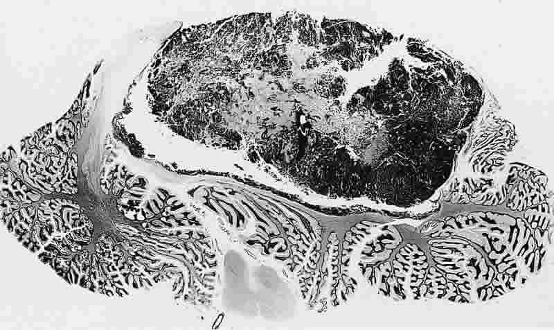 The image shows a brain slice with a medullablastoma.