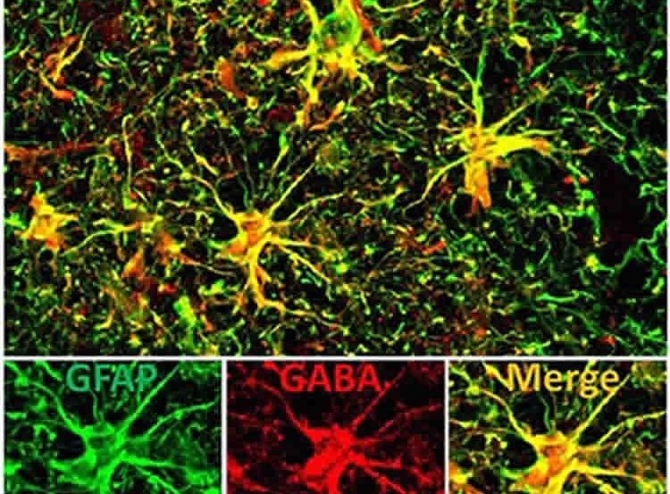 The image shows high concentrations of GABA in the astrocytes of an alzheimer's brain.