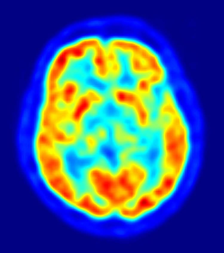 The image shows a PET scan of the human brain.