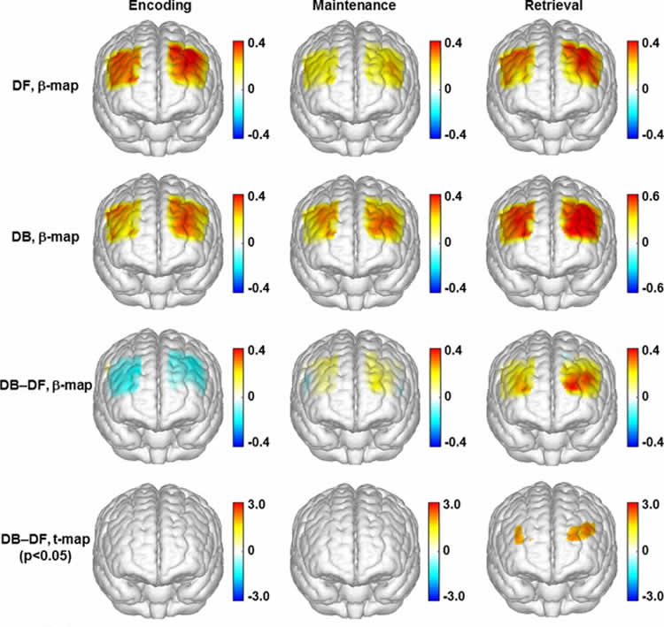 The image shows topographic images of the task evoked prefrontal activations.