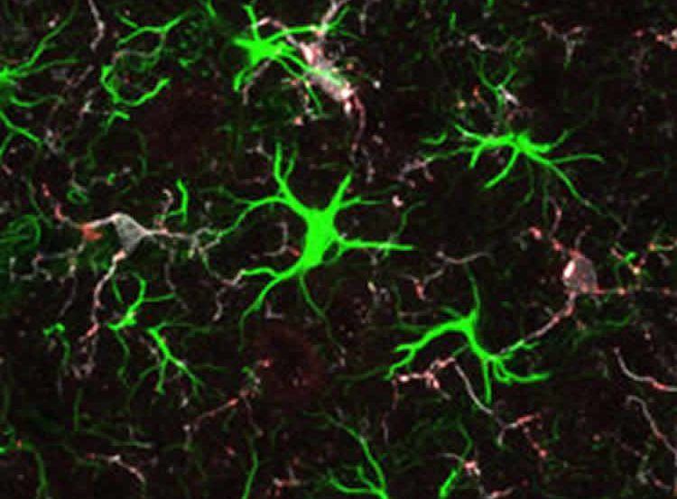 The image shows a brain slice from 5 week old mice with htt.