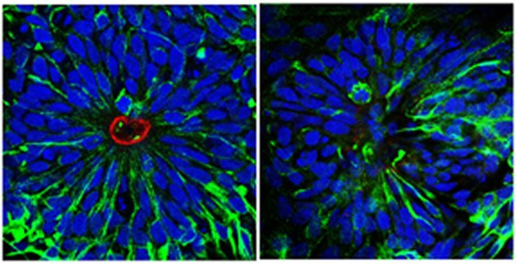 The image shows neural stem cells.