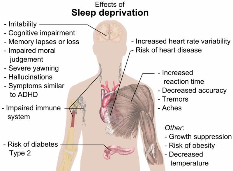 news articles on sleep deprivation