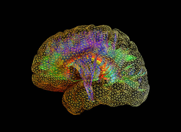 The image shows a mesh like representation of the human brain.